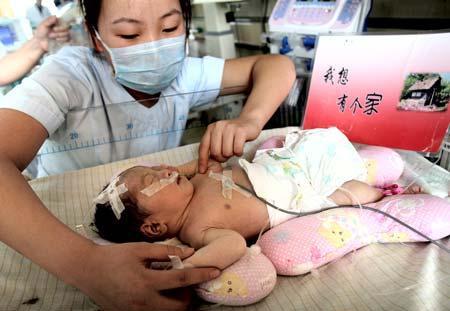 刚出生几小时男婴因先天性腹裂被遗弃(图)