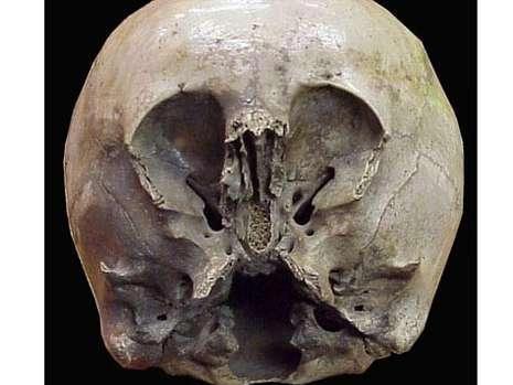 墨西哥发现一怪异头骨 疑是外星人和地球人混血