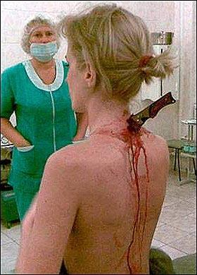 俄女子遭劫匪刀捅 脖子插刀回到家浑然不觉(图)