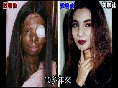 巴基斯坦美女遭议员丈夫泼酸毁容