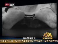 国外男尸解剖视频