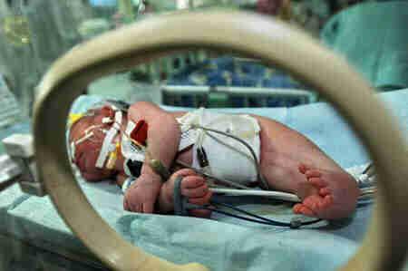 2004年,湖南省出生缺陷发生率为130.4/万,高于全国128.图片