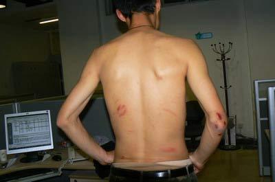 本报摄影记者为保护相机,背部被打得伤痕累累