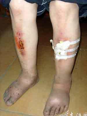 两个小腿都有很严重的伤口,脚肿得变形 本报抚州讯记者舒晓燕摄影报道:满脸满身的血迹,嘴巴被打得溃烂,腿上伤痕累累,手背脚背肿得变了形这名遍体鳞伤的小女孩叫文文,只有11岁。昨日记者来到文文家中,在当地派出所民警的帮助下将这名可怜的女孩解救出来。 据邻居们告诉记者,21日晚上,文文从8时被打到10时。